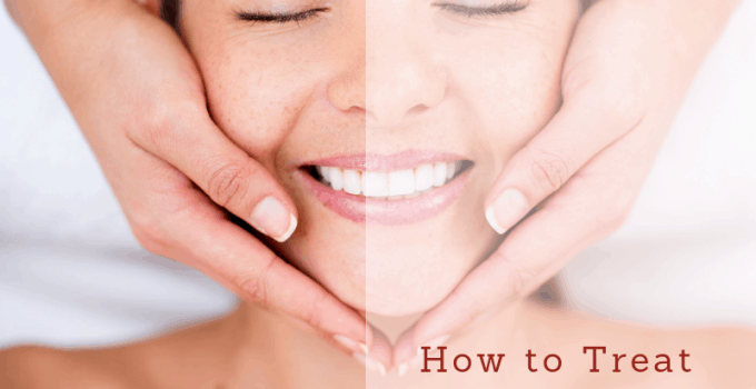 How to Treat Yourself to Mud Mask Facial